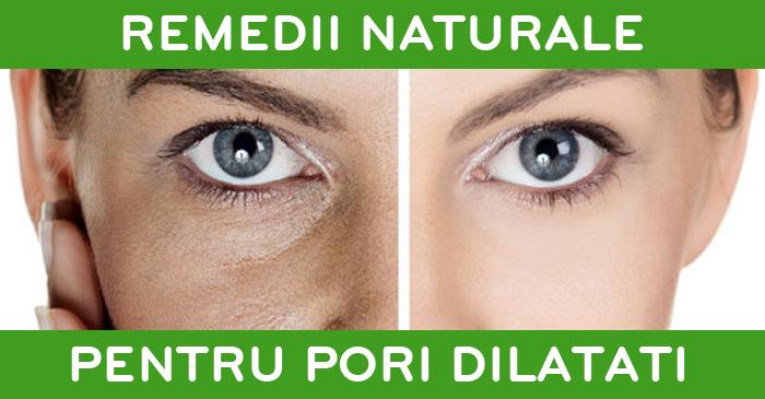 remedii-naturale-pori-dilatati