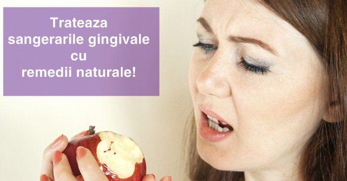 10 remedii pentru sangerarile gingivale