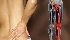 tratamente pentru sciatica