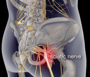 tratamente pentru sciatica nervul sciatic